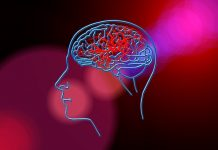 Startup Brainomix Secures £7M to Treat Strokes using AI
