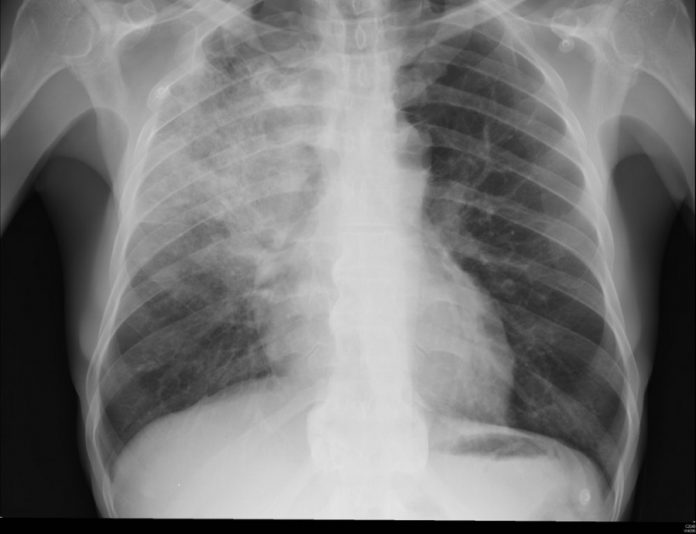 Hybrid Human-AI Machine Outperforms Radiologist as well as Deep-Learning Algorithms in Pneumonia Diagnoses